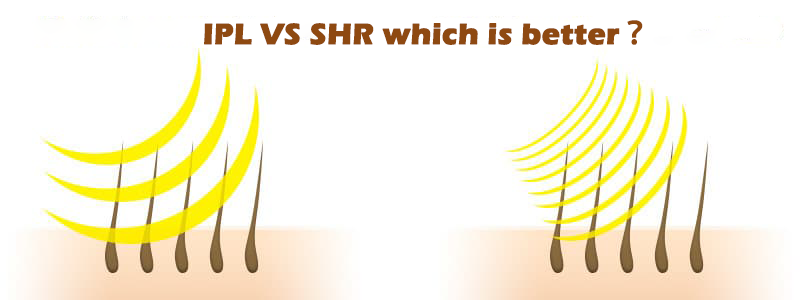 What is the difference between IPL and SHR?